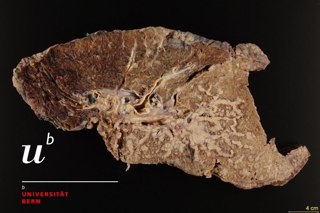 Primary adenocarcinoma of the lung 300dpiGood